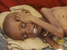 Podvyživené somálské dítě leží na zemi nemocnice v Mogadišu (5. července 2011)