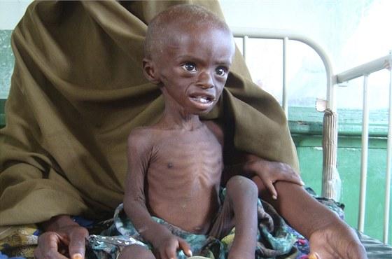 Silně podvyživený tříletý Abdihakin Omar v nemocnici Benadir v Mogadišu (21.