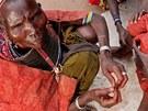Cecília se chystá provést obřízku mladé Samburky v severní Keni