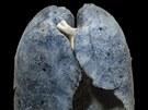 Pl�ce dlouholet�ho ku��ka. N�kter� �kodliviny z tab�kov�ho kou�e se v plic�ch ukl�daj�, a to hned od prvn� vykou�en� cigarety.