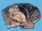 Pl�ce s rakovinou. Dev�t z deseti lid�, kte�� onemocn� rakovinou plic jsou ku��ci.