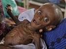 Vyzáblý sedmiměsíční Somálec Minhaj Gedi Farah krátce poté, co přišel do