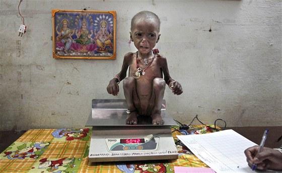 Indičtí lékaři váží těžce podvyživené dítě ve státě Madhjapradéš. Přestože...