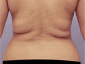 Radiofrekven�n� liposukce na klinice Asklepion. Revoluce v plastick� chirurgi