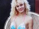 Lacey Wilddov� po sv� prvn� operaci prsou v roce 1990