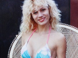 Lacey Wilddov po sv prvn operaci prsou v roce 1990