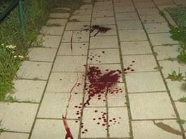 Zran�n� cyklista siln� krv�cel z poran�n� kr�n� tepny. Policist� ho na�li na