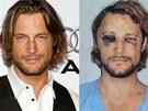 Model Gabriel Aubry před a po útoku herce Oliviera Martineze