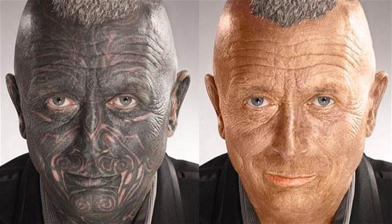 Srovnání Vladimíra Franze před odstraněním tetování a po.