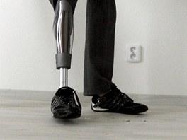 Andrea Brzobohatá z Brna přišla kvůli meningokoku o obě nohy.
