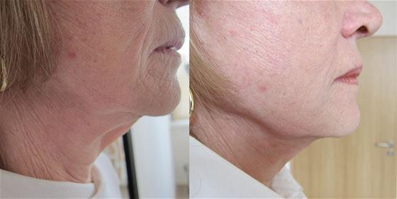 Vypnutí obličeje s pomocí nové metody Ulthera. Vlevo před zákrokem, vpravo