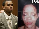 Chris Brown a fotografie Rihanny zve�ejn�n� pot�, co ji zp�v�k napadl (2009).
