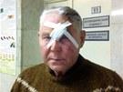 Vasil, zraněný při rázové vlně způsobené pádem meteoritu, stojí na chodbě