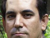 Murat Haktanir - ALD492db1_murat_haktanir