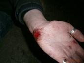 Zraněná ruka muže, který si chtěl přivolat na ulici pomoc. Zloděj mu však