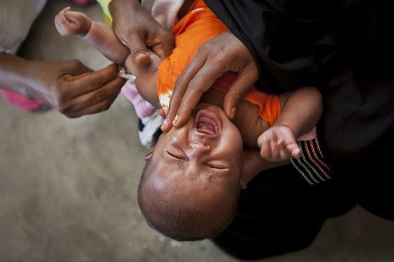 Očkování v Somálsku; Mogadišu, 24. dubna 2013. Ilustrační snímek.