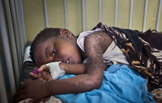 Dítě leží se spalničkami na izolaci nemocnici Benadir v somálském Mogadišu; 24.