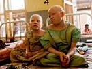 Mezi africkou veřejností se šíři pověry, které život albínům příliš