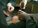 Lékaři zašívají původní řez, který je posledním krokem operace.