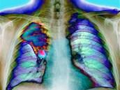 Snímek hrudi pacienta s rakovinou pravé plíce. Lé�ba nádoru zahrnuje...