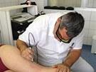 Lékař Pavel Hudík ošetřuje metličky pomocí cévního laseru.