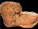 Průřez jater s cirhózou. Normální jaterní tkáň nahradily fibrózní jizvy....