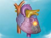Ženy i muži v Česku podle statistik nejčastěji umírají na kardiovaskulární choroby, druhou nejčastější příčinou je rakovina. Za smrt mohou ale i jiné nemoci. Podívejte se na lékařské snímky, co v těle způsobují.