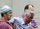 Strojvedoucí Francisco José Garzón Amo (uprostřed) utrpěl při nehodě zranění a...