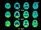 Pozitronová emisní tomografie (PET) mozku, kde je vidět, jak se postupně...