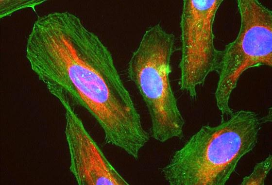 """Lidské nádorové buňky (tzv. HeLa linie) pod mikroskopem. Barevně je vyznačena přítomnost určitých látek v buňce. Modře je DNA (tedy v podstatě jádro buňky), zeleně bílkoviny aktin a červeně vimentin (obě spoluvytváří """"kostru"""" eukaryotických buněk, tzv. mikrofilamenty, a mají i jiné funkce)."""