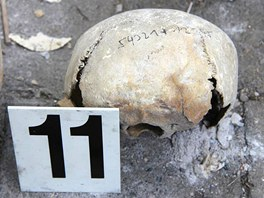 Bednu s 15 lidskými lebkami našel ředitel základní školy v Londýnské ulici na