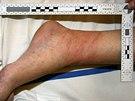 P�epaden� senior skon�il v nemocnici s velmi bolestiv�mi zran�n�mi.  Lupi�i ho...