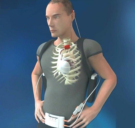 Syst�m um�l�ho srdce od spole�nosti Carmat je mobiln� a pacienta t�m��...