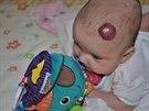 Sonička letos v květnu, kdy rodiče marně hledali pomoc při léčení hemangiomů.