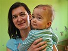 Současný stav hemangionů na těle Soničky dává velkou naději na uzdravení.