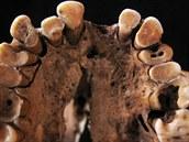 Zuby jednoho z dávných obyvatel Holubí jeskyně (Grotte des Pigeons) v Maroku....