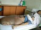 Číňan Chen Zongtao trpěl od dětství nezhoubným nádorem - neurofibromem. Protože...