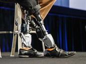 Šéf oddělení pro bioniku na MIT si vyrobil nové nohy.
