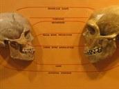 Srovnání lebky člověka druhu Homo sapiens a neandrtálce (vpravo). Vyniknou základní anatomické rozdíly, které ovšem podle genetických poznatků rozhodně neznamenaly, že by se oba druhy nemohly křížit.