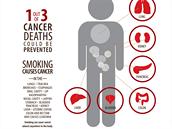 Kouření způsobuje přibližně třetinu případů rakoviny. A to nejen v plicích, ale...