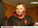 Dmytro Bulatov novinářům ukázal svá zranění (31. ledna 2014)