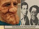 Grace McDaniels - Od narození trpěla vzácnou vadou, která způsobila neobvyklý...