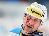 Martin Straka z Plzně inkasoval pukem do obličeje.