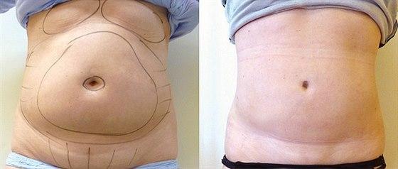 Kr�sn� t�lo bez bolesti s ultrazvukovou liposukc�!