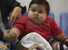 Santiago Mendoza se se svou váhou nemůže pohybovat.