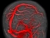 Normální okyslyčování mozku (magnetická rezonance se zvýrazněním toku krve)....