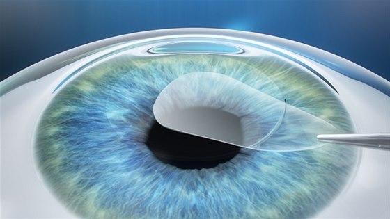 3D laserová operace očí  - 2. krok