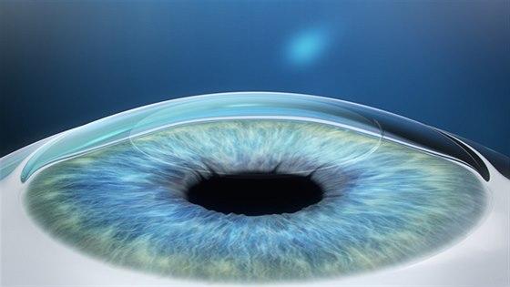 3D laserová operace očí  - 3. krok
