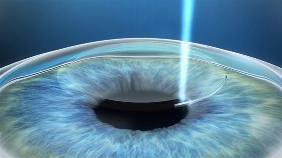 3D laserov� operace o�� - 1. krok