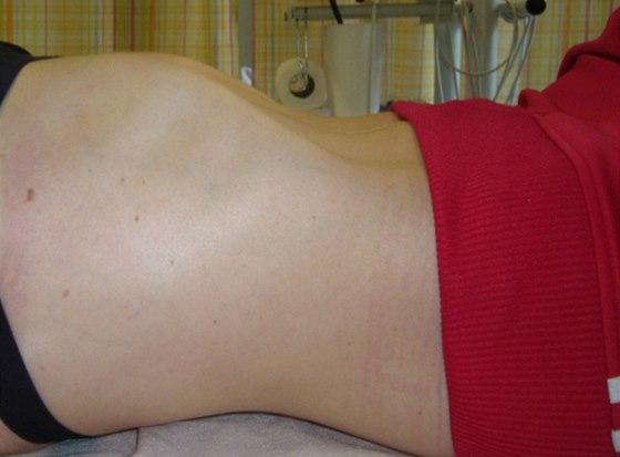 Inspirační postavení hrudníku při lehu na zádech